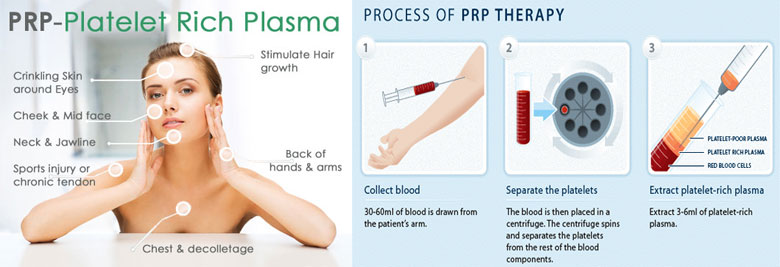 PRP Injections